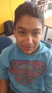 Nasenverletzung